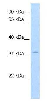 Western blot - HSD17B6 antibody (ab62221)