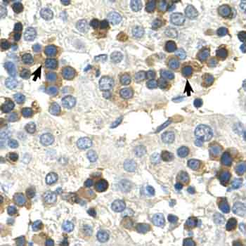 Immunohistochemistry (Formalin/PFA-fixed paraffin-embedded sections) - HSD17B6 antibody (ab62221)