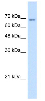 Western blot - TM9SF1 antibody (ab62222)