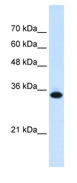 Western blot - SLC25A38 antibody (ab62224)