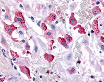 Immunohistochemistry (Formalin/PFA-fixed paraffin-embedded sections) - Bombesin Receptor 3 antibody (ab62284)
