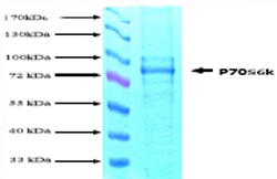 SDS-PAGE - S6K protein (His tag) (ab62291)