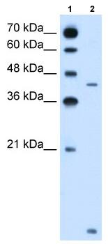Western blot - SLC46A3 antibody (ab62301)