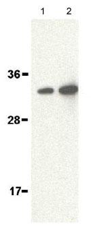 Western blot - ALS2CR2 antibody (ab62340)