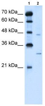 Western blot - SLC36A3 antibody (ab62383)