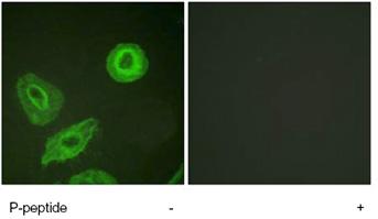Immunocytochemistry/ Immunofluorescence - ErbB 3 (phospho Y1289) antibody (ab62435)