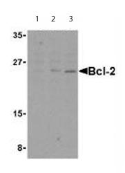 Western blot - Anti-Bcl-2 antibody (ab62468)