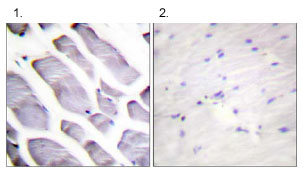 Immunohistochemistry (Formalin/PFA-fixed paraffin-embedded sections) - IKK alpha + IKK beta antibody (ab62481)