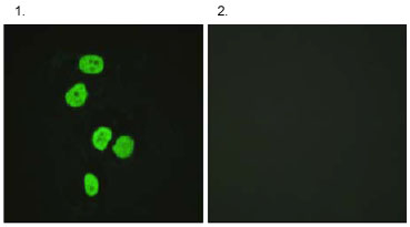 Immunocytochemistry/ Immunofluorescence - TBC1D4 antibody (ab62487)