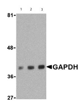 Western blot - GAPDH antibody - Carboxyterminal end (ab62489)