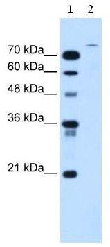 Western blot - USP48 antibody (ab62529)
