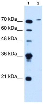Western blot - SLCO6A1 antibody (ab62548)