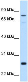 Western blot - GSTM2 antibody (ab62550)