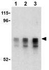 Western blot - CRMP1 antibody (ab62560)