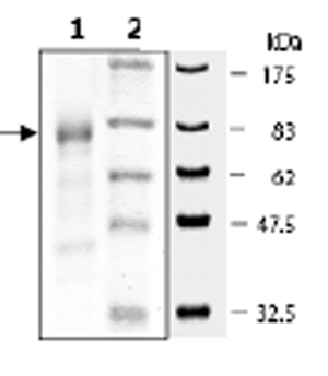 SDS-PAGE - MNK1 protein (Tagged) (ab62572)