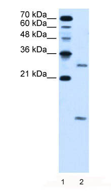 Western blot - VMA21 antibody (ab62591)