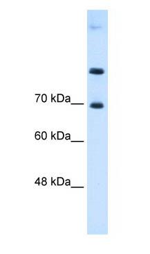 Western blot - SLC7A4 antibody (ab62592)