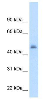 Western blot - CYP3A7 antibody (ab62593)