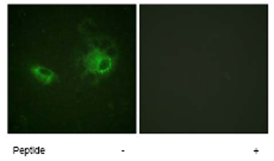 Immunocytochemistry/ Immunofluorescence - PDGF Receptor beta antibody (ab62620)
