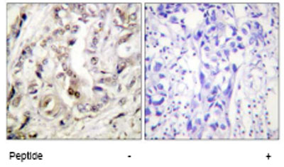 Immunohistochemistry (Formalin/PFA-fixed paraffin-embedded sections) - Progesterone Receptor antibody (ab62621)