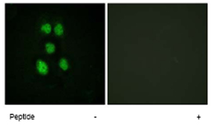 Immunocytochemistry/ Immunofluorescence - VAV1 antibody (ab62622)