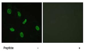 Immunocytochemistry/ Immunofluorescence - Androgen Receptor antibody (ab62627)