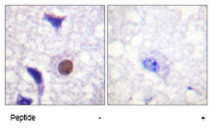 Immunohistochemistry (Formalin/PFA-fixed paraffin-embedded sections) - Histone H3.3 antibody (ab62642)