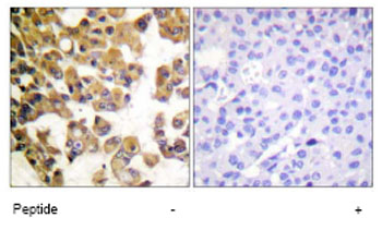 Immunohistochemistry (Formalin/PFA-fixed paraffin-embedded sections) - Bad antibody (ab62647)