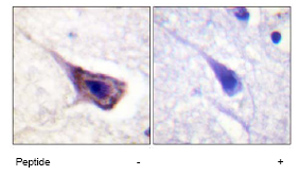 Immunohistochemistry (Formalin/PFA-fixed paraffin-embedded sections) - Bad antibody (ab62651)