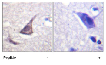 Immunohistochemistry (Formalin/PFA-fixed paraffin-embedded sections) - Calcium Sensing Receptor antibody (ab62653)