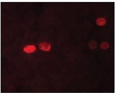 Immunocytochemistry/ Immunofluorescence - Nanog antibody [NNG-811] (ab62734)