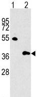 Western blot - G protein beta subunit like antibody (ab62808)