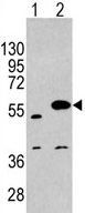 Western blot - SPRED1 antibody (ab62911)