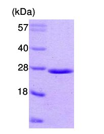 SDS-PAGE - Rab5 protein (ab62956)