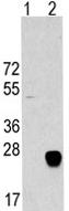 Western blot - METTL7A antibody (ab62969)