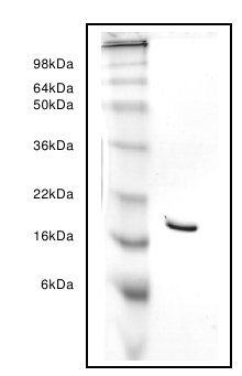 SDS-PAGE - intestinal FABP protein (ab63111)