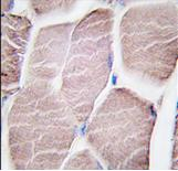 Immunohistochemistry (Formalin/PFA-fixed paraffin-embedded sections) - PYGM antibody (ab63158)