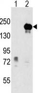 Western blot - Anti-EHMT1/GLP antibody (ab63161)