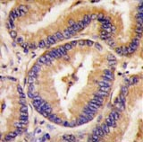 Immunohistochemistry (Formalin/PFA-fixed paraffin-embedded sections) - Phospholipase A2 activator protein (PLAP) antibody (ab63170)