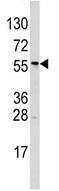 Western blot - ALDH6A1 antibody (ab63181)