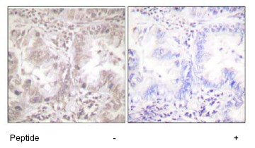 Immunohistochemistry (Formalin/PFA-fixed paraffin-embedded sections) - AKT1 antibody (ab63251)