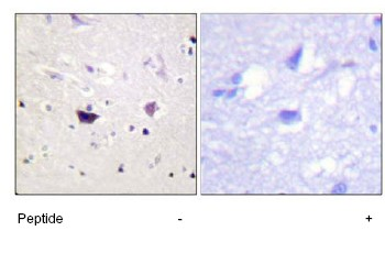Immunohistochemistry (Formalin/PFA-fixed paraffin-embedded sections) - PAK1 + PAK2 + PAK3 antibody (ab63259)