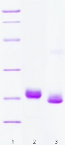 SDS-PAGE - VILIP1 protein (His tag) (ab63276)