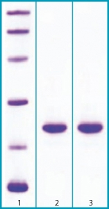 SDS-PAGE - FGF21 protein (ab63277)