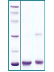 SDS-PAGE - Neuroglobin protein (ab63278)