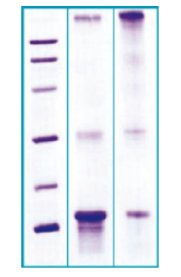 SDS-PAGE - HPG1 protein (His tag) (ab63279)