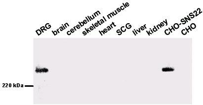 Western blot - Nav1.8 antibody (ab63331)