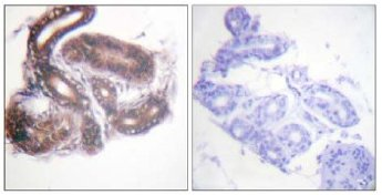 Immunohistochemistry (Formalin/PFA-fixed paraffin-embedded sections) - HDAC3 antibody (ab63353)