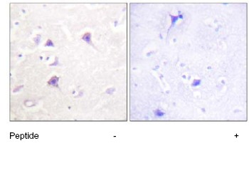 Immunohistochemistry (Formalin/PFA-fixed paraffin-embedded sections) - ErbB 4 antibody (ab63354)