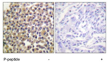 Immunohistochemistry (Formalin/PFA-fixed paraffin-embedded sections) - BCAR1 (phospho Y249) antibody (ab63360)